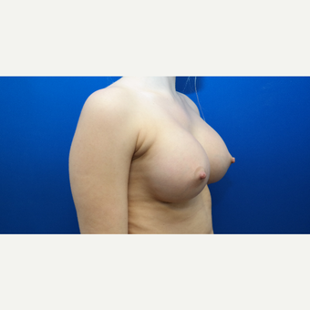 25-34 year old woman treated with Breast Augmentation after 3103026