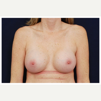 35-44 year old woman treated with Breast Implant Revision before 3258999