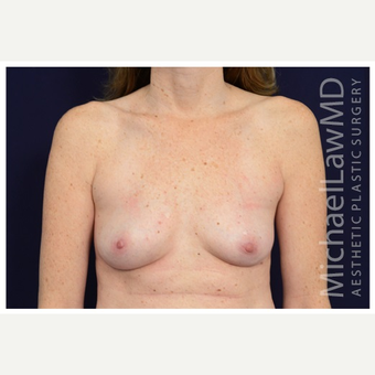 35-44 year old woman treated with Breast Implant Revision after 3258999