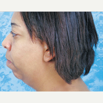 Chin Surgery before 3124406