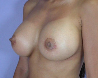 Breast Augmentation after 281410