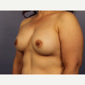 45-54 year old woman treated with Breast Augmentation after 3671540