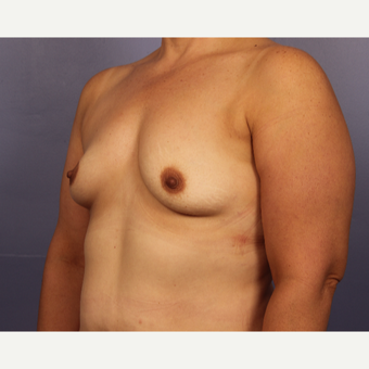 45-54 year old woman treated with Breast Augmentation before 3671540