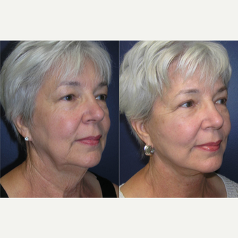 60 year old woman treated with Facelift before 3465424