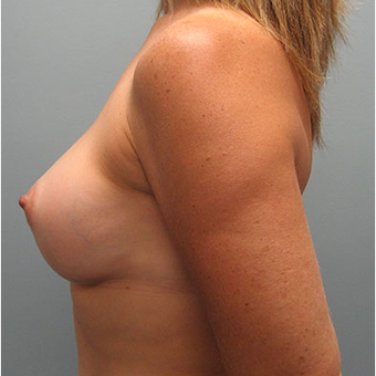 45 year old woman treated with Breast Augmentation after 3468379
