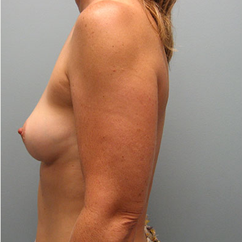45 year old woman treated with Breast Augmentation before 3468379
