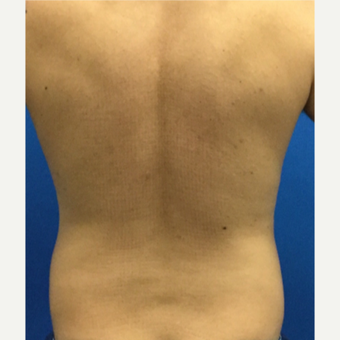 35-44 year old man treated with Liposuction before 3221171