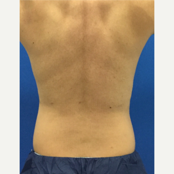 35-44 year old man treated with Liposuction after 3221171