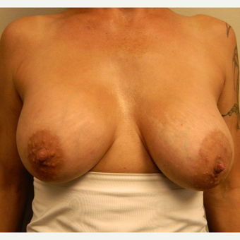 45-54 year old woman treated with Breast Lift with Implants after 3185647