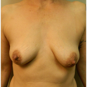 45-54 year old woman treated with Breast Lift with Implants before 3185647