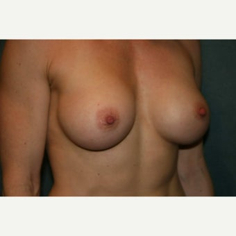 Breast augmentation with 370cc anatomically shaped silicone implants - Natrelle style 410 1968312