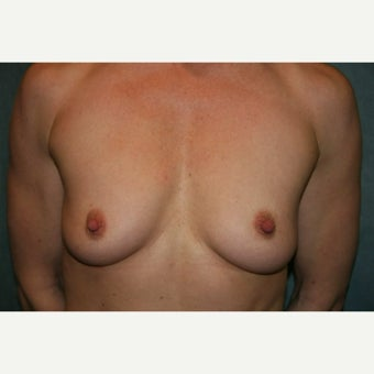 Breast augmentation with 370cc anatomically shaped silicone implants - Natrelle style 410 before 1968312
