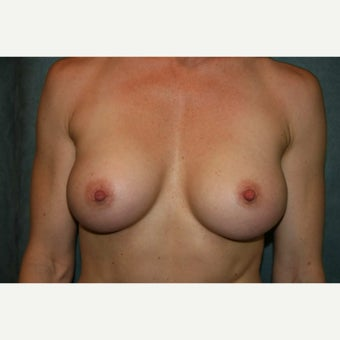 Breast augmentation with 370cc anatomically shaped silicone implants - Natrelle style 410 after 1968312