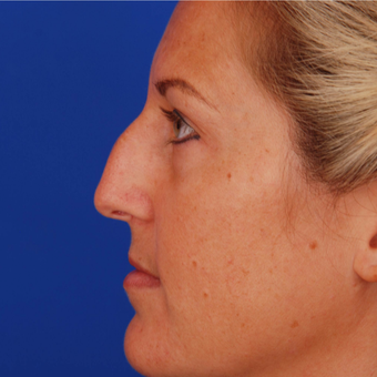 25-34 year old woman treated with Rhinoplasty - Nose Refinement - Nose Job before 3284442