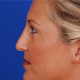 25-34 year old woman treated with Rhinoplasty - Nose Refinement - Nose Job after 3284442
