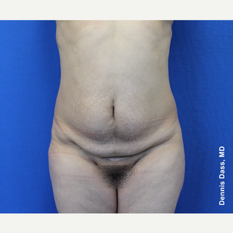 45-54 year old woman treated with Tummy Tuck before 3679870
