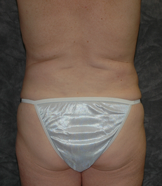 Vaser Liposuction before 929475