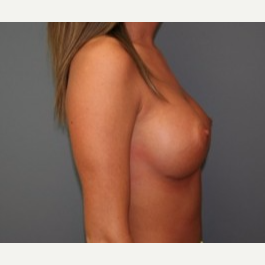18-24 year old woman treated with Breast Implants after 3303940