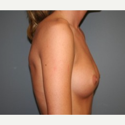 18-24 year old woman treated with Breast Implants before 3303940
