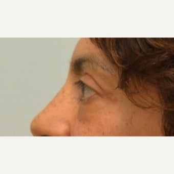 Tightening and collagen regeneration of under-eye area with Tripollar treatment after 2219200