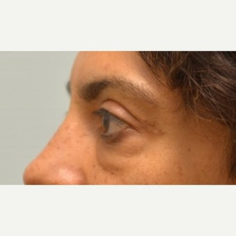 Tightening and collagen regeneration of under-eye area with Tripollar treatment before 2219200