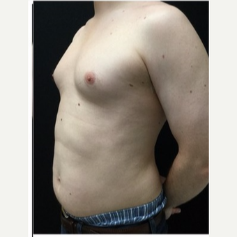 25-34 year old man treated with Male Breast Reduction before 3218522