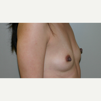 25-34 year old woman treated with Breast Implants before 3154136