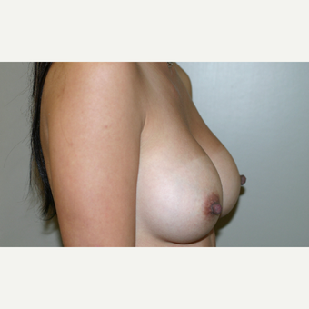 25-34 year old woman treated with Breast Implants after 3154136