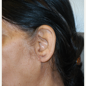75 and up year old woman treated with Ear Lobe Reduction Surgery after 3414321