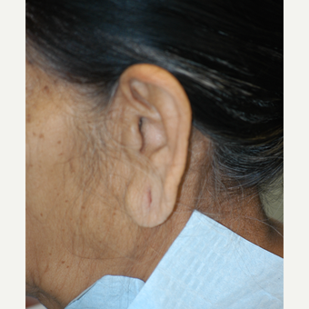 75 and up year old woman treated with Ear Lobe Reduction Surgery before 3414321