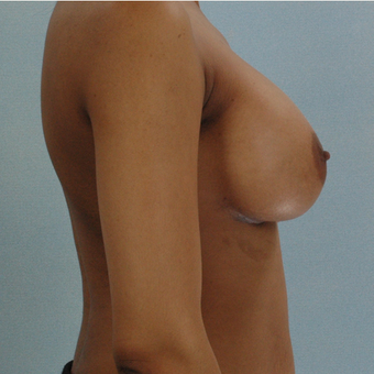 Breast Implants after 3033315