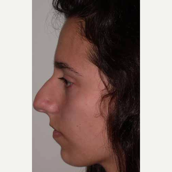 35-44 year old woman treated with Rhinoplasty before 3521246