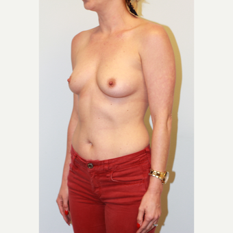 25-34 year old woman treated with Breast Augmentation before 3027102