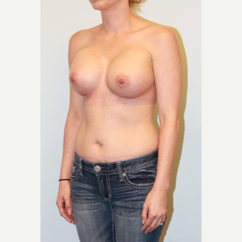 25-34 year old woman treated with Breast Augmentation after 3027102