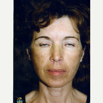 45-54 year old woman treated with Facelift after 3271860