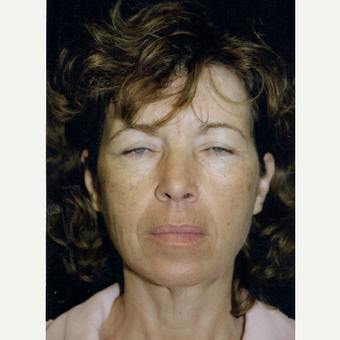 45-54 year old woman treated with Facelift before 3271860