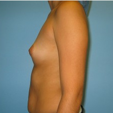 Breast Augmentation before 3665694