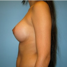 Breast Augmentation after 3665694