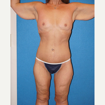 33 year old woman treated with Body Lift before 3576656