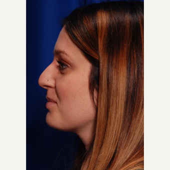 25-34 year old woman treated with Rhinoplasty before 3500282