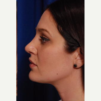25-34 year old woman treated with Rhinoplasty after 3500282