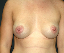 Breast Implants after 3545055