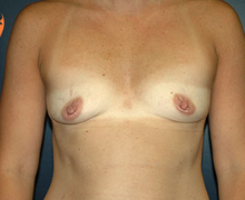 Breast Implants before 3545055