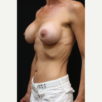 42 year old woman treated with Mentor Breast Implants after 3070968