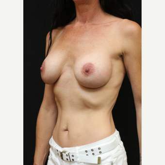 42 year old woman treated with Mentor Breast Implants before 3070968