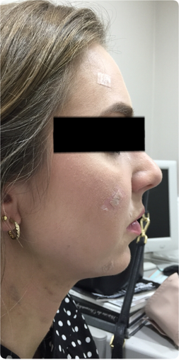 35-44 year old woman treated with Neck Liposuction with Fat Pad Removal after 3747079