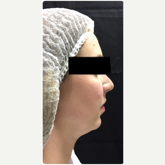 35-44 year old woman treated with Neck Liposuction with Fat Pad Removal before 3747079