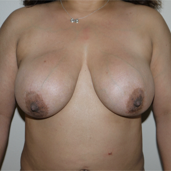 45-54 year old woman treated with Breast Implant Removal before 3077639