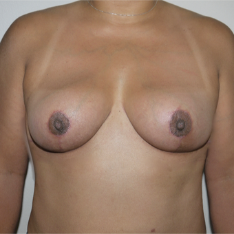 45-54 year old woman treated with Breast Implant Removal after 3077639