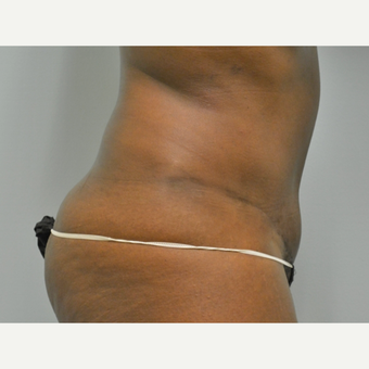Tummy Tuck on 41 year old patient after 3259132